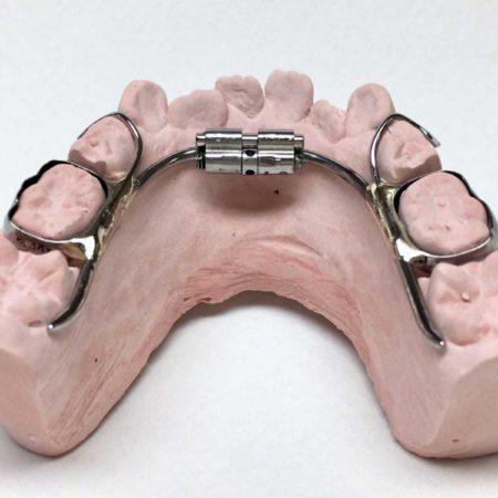 ortodonciabcn_fixe_01