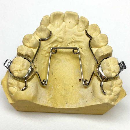ortodonciabcn_fixe_11