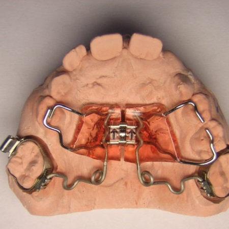 ortodonciabcn_fixe_14