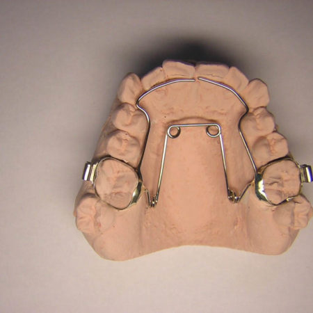ortodonciabcn_fixe_18