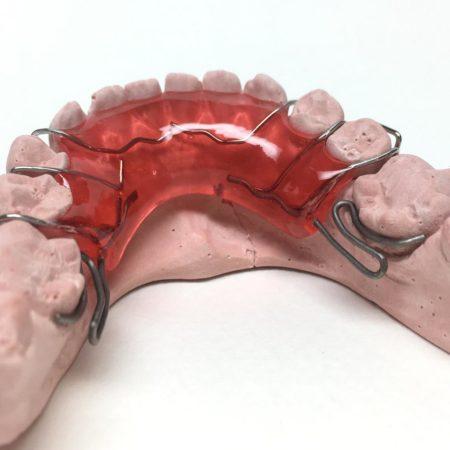ortodonciabcn_removible_05
