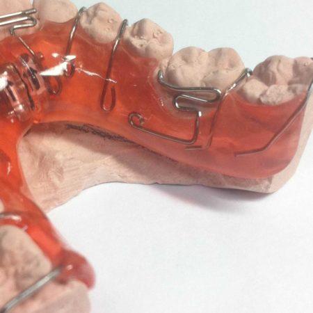 ortodonciabcn_removible_10