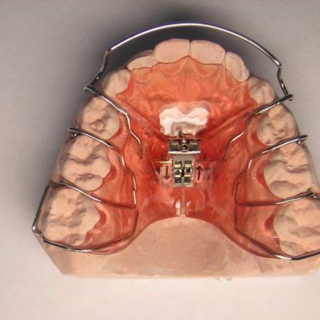 ortodonciabcn_removible_12