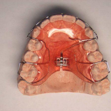 ortodonciabcn_removible_13